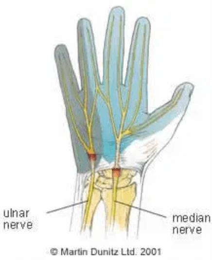 ผังผืดกดทับเส้นประสาทข้อมือ (Carpal Tunnel Syndrome)