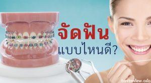 จัดฟันมีกี่แบบ คุณควรจัดฟัน แบบไหนดี (จัดฟันด้านนอก, ด้านใน หรือจัดฟันแบบใส)