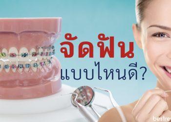 จัดฟัน แบบไหนดี